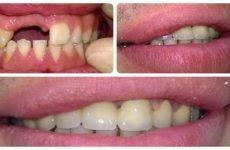 Протезування передніх зубів: різновиди процедури і використовувані матеріали