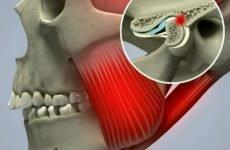 Болить щелепа: причини, симптоми, методи лікування та профілактики