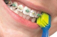 Зубна щітка для брекетів: специфіка вибору, правила користування
