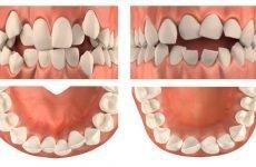 Скупченість зубів: причини патології та методи лікування