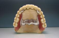 Бюгельний протез на верхню щелепу: різновиди, переваги і недоліки