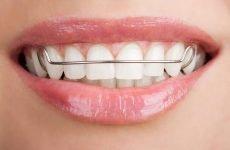 Пластини для вирівнювання зубів: різновиди, показання та протипоказання