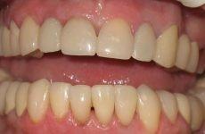 Коронки на передні зуби: основні різновиди, аспекти вибору
