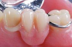 Матеріали для протезування зубів: основні різновиди