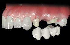 Мостовидні незнімні зубні протези: різновиди та переваги