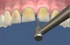 Препарування під вініри: особливості проведення процедури