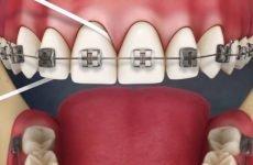 Як користуватися зубною ниткою при брекетах: правила очищення і гігієни