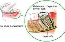 Зубний флюс: як швидко зняти пухлину і набряклість щоки