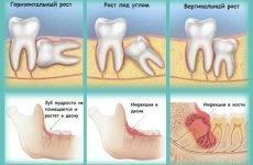 Зуб мудрості при вагітності: прорізування, лікування, видалення