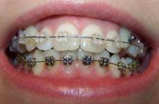 Металеві та керамічні брекети: переваги та недоліки