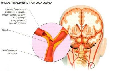 Який тиск пр інсульті вважається критичним?