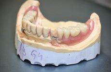 Бюгельний протез на нижню щелепу: види, конструкція, плюси і мінуси
