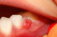 Антибіотики при кісті зуба: найбільш ефективні та безпечні