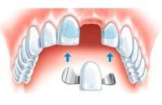 Протез на один зуб: особливості конструкції і установки