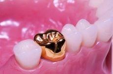 Як ставлять коронку на зуб: етапи встановлення і виготовлення