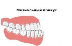 Мезіальний прикус: причини, методи діагностики і корекції
