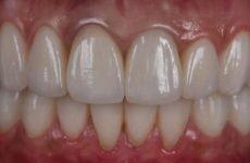 Клей для зубних коронок: правила використання та основні особливості