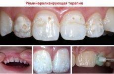 Ремінералізація зубів: як проводиться процедура, препарати, відгуки