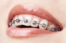 Ретенційний період ортодонтичного лікування після зняття брекетів