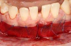 Вестибулопластика: види операції, особливості операції і можливі ускладнення