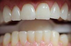 Догляд за зубами з металокераміки: засоби і методи чищення протезів