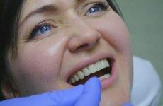 Як знімають коронку зуба з: показання та методики проведення процедури
