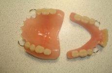 Знімні протези для зубів: які краще і як їх вибрати?