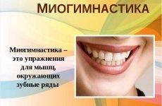 Міогімнастика в ортодонтії: комплекси вправ, ефективність методики