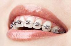 Що ставлять на зуби після брекетів: що носять після зняття конструкції?