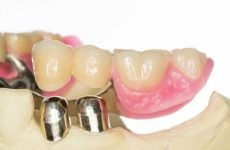 Телескопічні зубні протези: різновиди, показання, плюси і мінуси