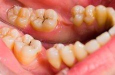 Болить зуб після лікування карієсу: причини болю і методи лікування
