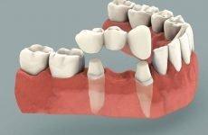 Зубний міст: конструктивні особливості, показання, переваги