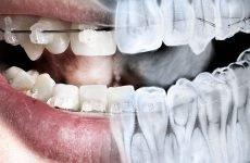 Рентген зубів: шкода процедури, показання до проведення та різновиди