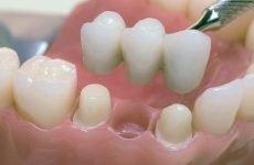 Незнімні зубні протези: плюси і мінуси, особливості виготовлення та встановлення