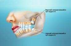 Болить зуб мудрості на нижній щелепі: як зняти біль, якщо болить десна біля зуба?