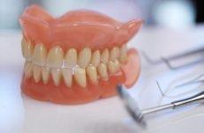 Ремонт зубних протезів: причини поломок, методи відновлення