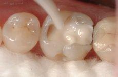 Композитні матеріали в стоматології: призначення та різновиди