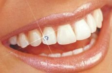 Скайси на зуби: різновиди прикрас, особливості догляду