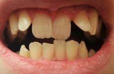 Як вирівняти зуби без брекетів: альтернативні методи корекції прикусу