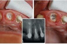 Нарощування зуба на корінь: методи відновлення