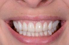 Чи можна ставити коронку на живий зуб: необхідність і особливості процедури