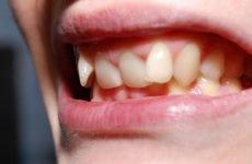 У скільки років можна ставити брекети: обмеження та рекомендації