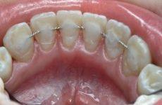 Шинування зубів: особливості проведення процедур, показання та відгуки