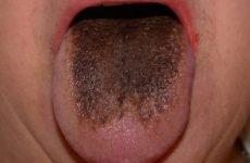 Коричневий наліт на язиці у дорослих: причини появи та методи діагностики