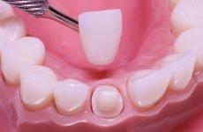 Коронки на зуби: різновиди, переваги і недоліки