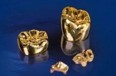 Золоті коронки: виготовлення, імплантація, переваги і недоліки