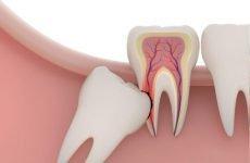Після видалення зуба мудрості піднялася температура: що робити?