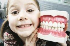 Видалення зубів мудрості при установці брекетів: необхідність екстракції