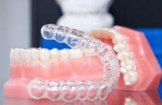 Капа для зубів: особливості застосування, види, плюси і мінуси