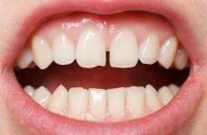 Щілина між зубами (Діастема): різновиди та методи корекції дефекту